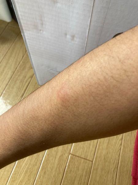 体のいたるところが赤く腫れて痒いんですけど、原因はなんでしょうか? 現在は、腕と顔、背中に1つずつできています。 見た感じは大したことないのですが触ってみると、かなりボコッと膨れてます。 症状の...