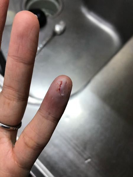 昨日の15時くらいにピーラーで怪我しました。 止血して、ハイドロコイドを貼りました。 このような感じなので、皮の上から貼っています。 これで、治るのでしょうか? ハイドロコイドが、毎日交換と書...