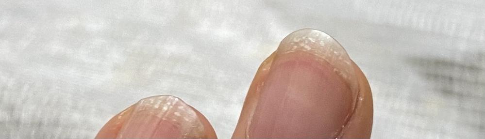 最近、爪の白い部分が写真のようになります。 後日病院へ行く予定ですが、この症状は何なのかもし心当たりのある方がいらっしゃいましたら、教えていただけないでしょうか。 よろしくお願いします。