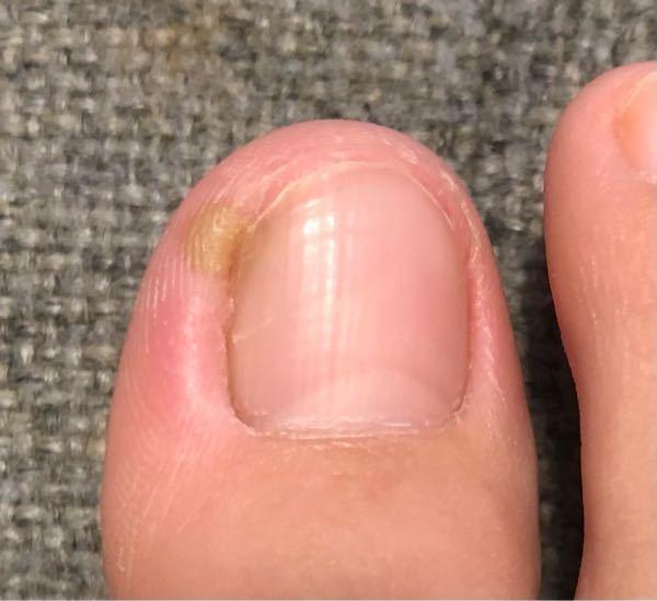 【足の爪の画像あります】足の爪を切った次の日に親指の爪に痛みを感じましたが我慢出来る程度なのでほっといていたら、それから数日後画像のように変色していました。 菌が入ってしまったのでしょうか。 子...