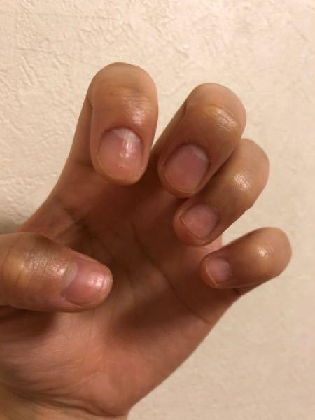 深爪と爪のでこぼこがひどいです おすすめのケア方法、ケア商品教えてください 正しい伸ばし方も教えてほしいです