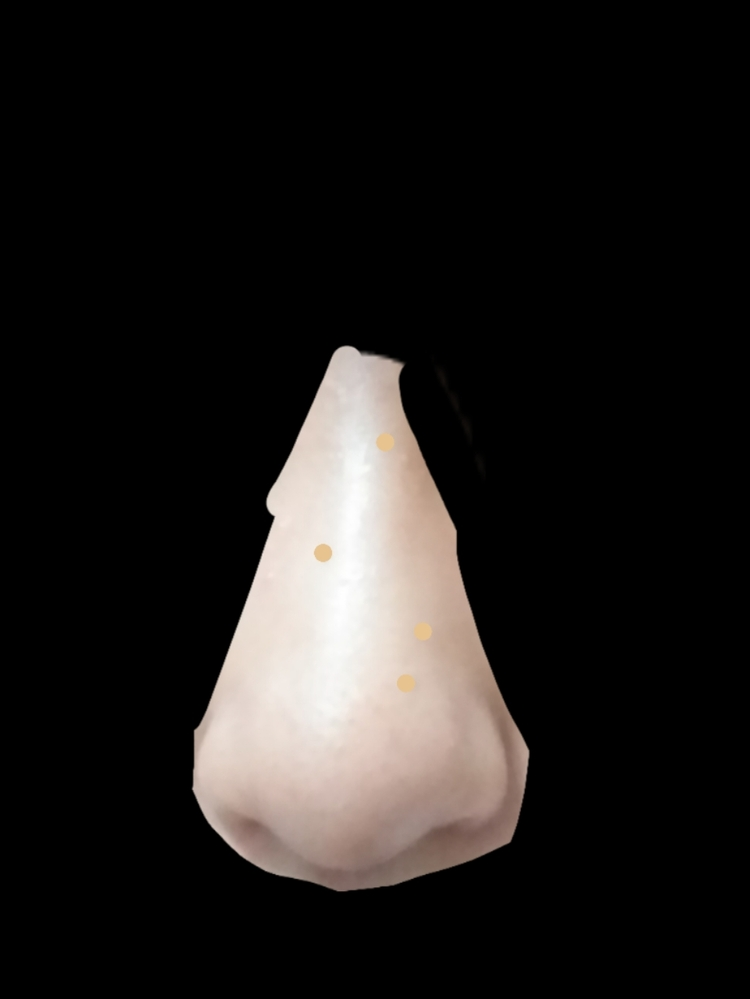 このだんご鼻を整形以外で直す方法はありますか?