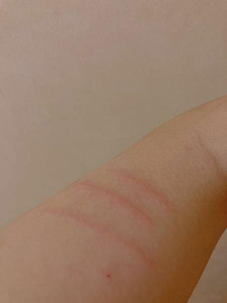 リスカをした後に傷のまわりが赤く晴れてきたのですが、、これは菌が入ったからなのでしょうか?