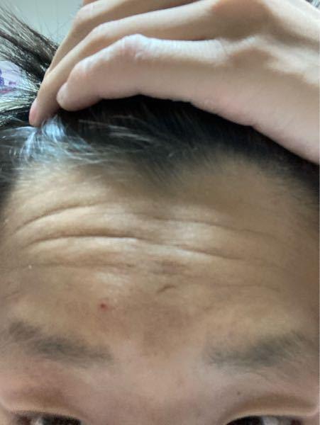 生まれつき前が薄くてサイドの部分が禿げてるんですけど、将来絶対禿げますか?