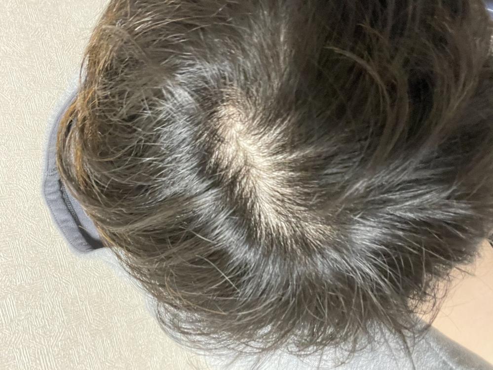 21歳です。 このつむじは禿げる前兆でしょうか? 頭皮は白い方で渦の巻筋もしっかり見える方だと思っていましたが、それにしてもつむじが広すぎる気がします。 猫っ毛でスプレー、ワックス、ジェルも意味...