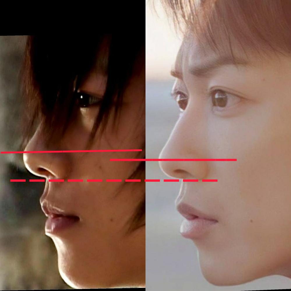 佐藤健さんの横顔が好きでインスタ等で写真を検索していたのですが、デビュー当時の写真を見つけてしまい、 鼻が違うことに気がついてしまいました… 写真の左がデビュー当時で、右が最近です。 鼻先の1番高い位置が違っているように見えますし、デビュー当時は丸いような?鼻の穴も少し上を向いてるような? 綺麗な鼻筋は整形なのでしょうか。