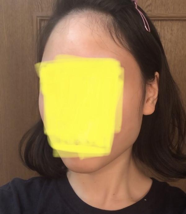 面長で悩んでいます。18歳です。 私は面長でエラもはってて骨格画男らしく、昔からずっとコンプレックスです。中顔面もおでこも縦に長く広くていやです。小顔からはかけはなれています。 整形しかないのは...