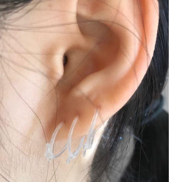 ピアス 再度質問させていただきます。 開けて半年弱経つロブのピアスホールに痛みが出てきました。見た目は全く腫れておらず膿もなくて、熱も持っていません。ただ、ピアスを前後に動かしたりちょっと何かが触れる とピリッとした痛みが走り、髪の毛やマスクの紐が触れても痛いです。 これは炎症を起こしているのでしょうか?消毒をしたほうがいいでしょうか?何かケア方法があれば教えてください また、反対側の耳のピアスは膿んだので病院でシリコンチューブを入れてもらい処方された軟膏を塗っているのですが「見た目で炎症が治ったら付け替えていいですよ」と言われました。今の状態を写真に撮ったのですがこれは治っているように見えますか?