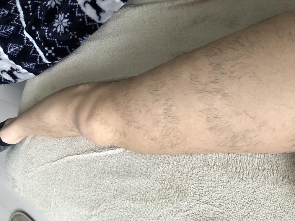 現在脱毛サロンに月一で通っています。1月から通い始め、合計3回行きました。脱毛の種類は光脱毛です。 結果写真のような出来です。見てわかるほど縞々になっているのですが、これは当て忘れが問題でしょうか?それともこんなものなのでしょうか? 元々毛深い方なので、根気強く通う必要があるとは思ってますが、もし前者の場合、施術先を変更したほうがよいかと思いお伺いします。 ご意見ください。よろしくお願いします。