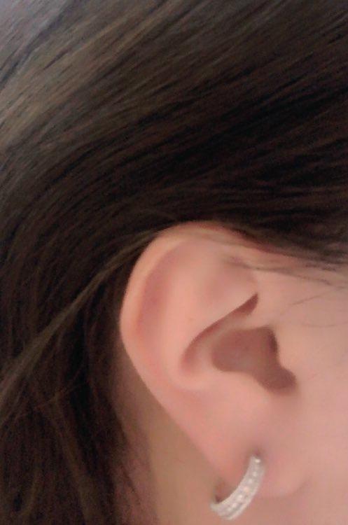 ピアス インダストリアルについて。 インダストリアルを来月、ニードルで開けようと思っているのですが、縦ではなくなるべく上部で横に通したいと考えていますが、この耳の形でインダストリアルは可能でしょうか?
