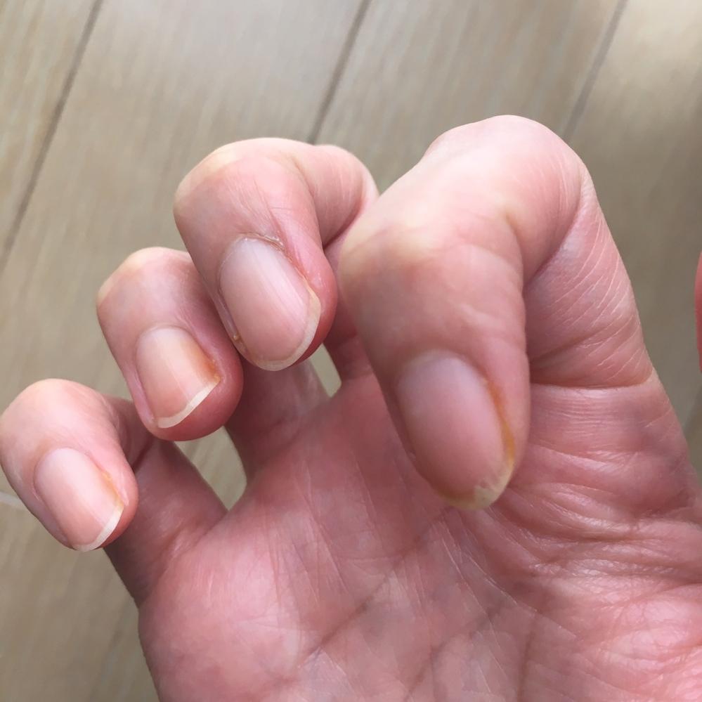 一昨日、爪の脇が濃いオレンジ色に変色しているのを見つけました。 時間の経過と共に他の指にも同じ症状が現れ始め、今日の時点で両手の爪のほとんどに症状が見られます。 痛みや痒み、違和感などはありま...