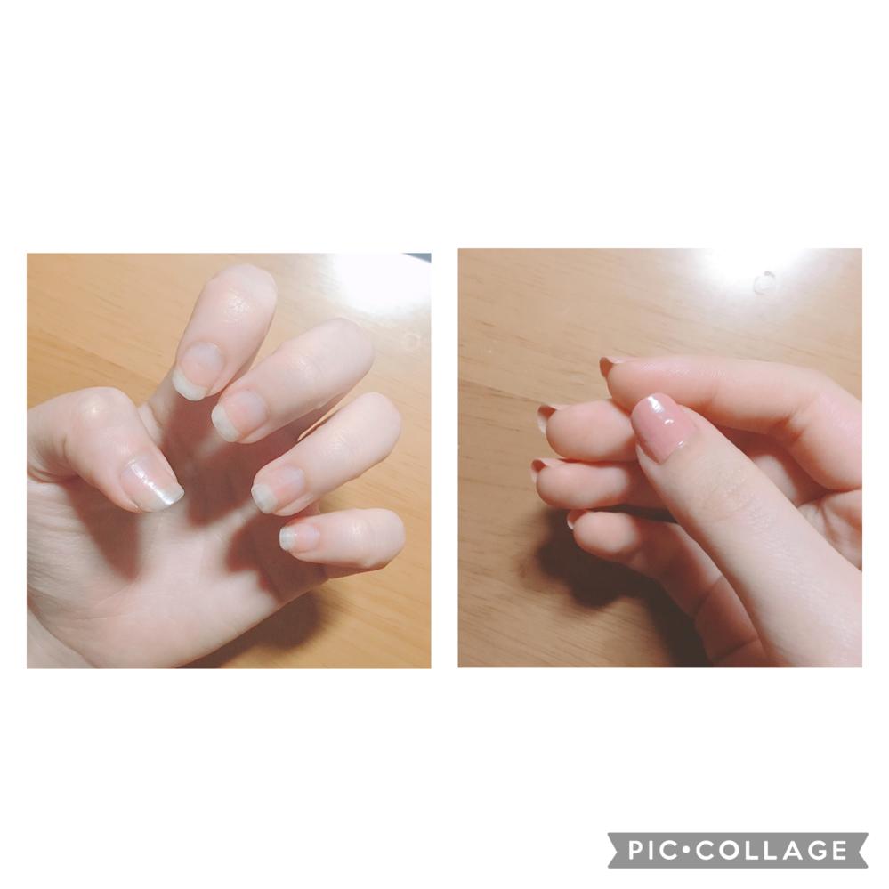 初めまして。 以前もこちらで相談させていただいたのですが… 私は恥ずかしながら2月頃まで爪を噛む癖がありました。 2月から今までの3ヶ月間意識して噛むのを辞めたり、我慢してきました。 画像 左:現在の爪の長さ 右:現在の横から見た爪 長さだけで見るとだいぶ伸びたと思うのですが、フリーエッジ?が長すぎるのが悩みです。 ピンクの部分が少しづつ伸びてきたのは少し分かります。ですが、指の先...