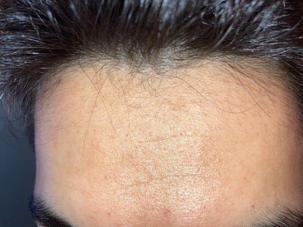 この産毛って剃ったら太くなりますか? 額に産毛が生えていて、何気に思ったのですがこれを剃って濃くなれば額が少しせまくなるんじゃないかと。