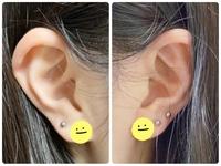 軟骨ピアスの位置について質問です。  今現在画像のようにロブに5つ開けています。 (両耳とも1番下につけてるのがイニシャルピアスなので念の為画像加工して隠しました。スタンプのちょうど真ん中辺りに穴があります。)  今度ヘリックスに1つ開けたいと思っているのですが、どの辺に開けるのがいいと思いますか?  また、ヘリックス意外にもおすすめの位置があったら教えてください。  ちなみ...