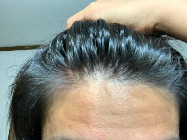 高3でこれって禿げてますか? ここ二ヶ月間センターパートにして、ワックスやケープをかなりつけていたので、前髪が後退している気がします。