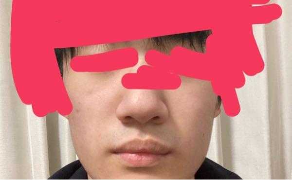鼻がデカくみえる原因は何でしょうか? 横幅が広いから?