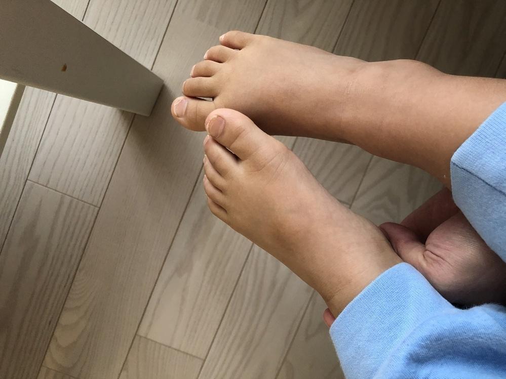 【子供の足の甲について】 3歳の息子の足の甲について。 以前からなんとなく気になっていたのですが、この4月に入園し指定靴(細身で浅めのスリッポンのような靴)を履くようになってから足の甲のアザ?跡?のようなものが目立つようになりました。 靴屋さんでサイズを測って頂いた際に息子は甲高、幅広だということを教えていただきました。 こちらは甲高からくるアザなのでしょうか。 休み明けに整形外科を受...