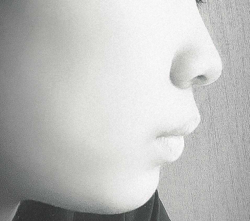 綺麗なEラインに憧れてるんですが、 私は歯並びはよく褒められるんですか横から見たら少し上の前歯が少し出ている感じでとても綺麗とは言い難い横顔です。 また唇が上向きでコンプレックスです。 この場合...