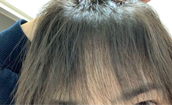 髪の毛についての質問です。 汗かいたときや、湿気があるときに写真のような前髪になってしまいます。根元が凄く上がって(もっこりする?)でうねうねします。朝は毎日ヘアアイロンやトリートメントつけてますが、どうしてもこうなってしまいます。 改善する方法はありますか?