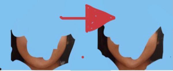 左の輪郭を右の様に整形したいです。 骨切り以外の方法で、顎をシャープにする整形方法を教えて下さい。 オススメのやつとかも教えてください。