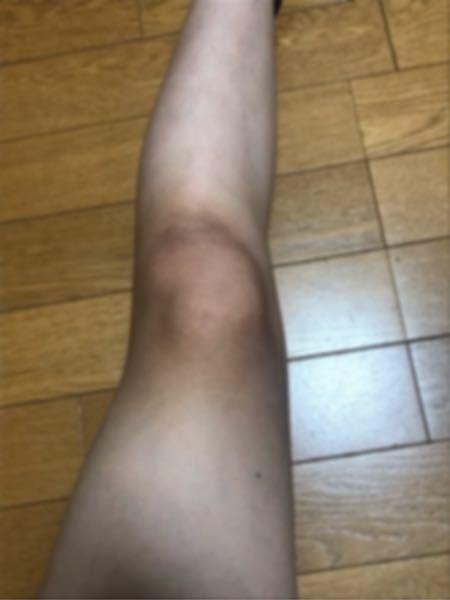 肉眼で見たらこの画像よりましですが、膝がめちゃくちゃ黒いです。なるべく短期間で、どうしたら治りますか?(>_<)肘も治したいです。