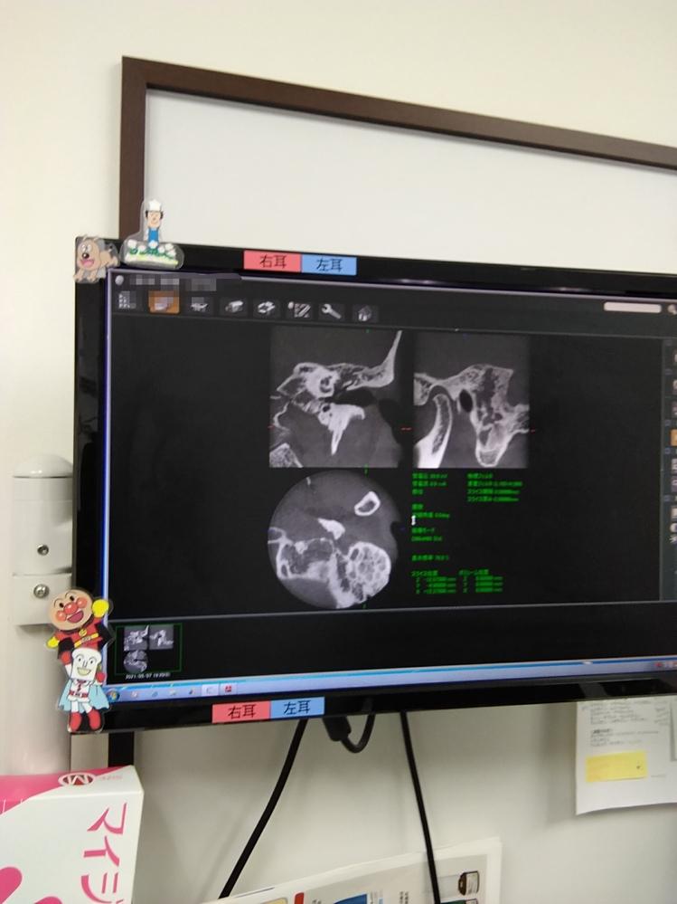 耳のCT画像です、それぞれ何処を写しているのか教えて下さい。