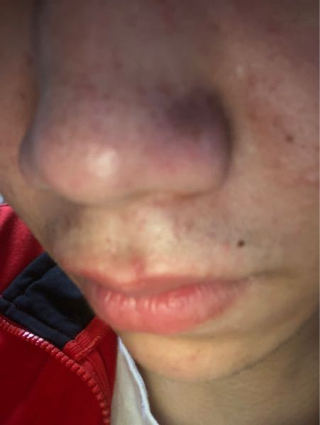 お恥ずかしいですがこんな鼻の黒ずみの落とし方を教えてください。お願いします なかなかしつこくて困ってます。