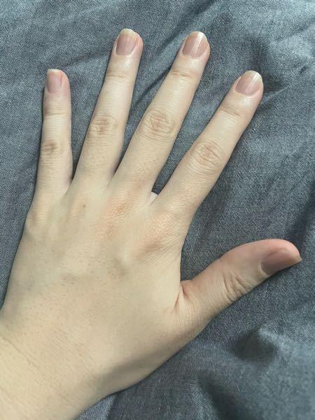 22歳の男です。 手と指の毛って何か処理した方がいいですか? 写真の通りぽつぽつと毛があるんですが、男でも剃った方がいいんですか? なんかツルツル過ぎるのもおかまみたいと思われちゃわないかと思って。