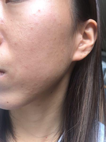 お見苦しい写真を申し訳ありません。 今ニキビ治療中で皮膚科に通いぺピオクリームを 毎晩使っています。 ニキビはこの写真の時よりもだいぶ綺麗になりました。 あとは毛穴がとても気になるのですが、 何かいい方法はありますでしょうか? 高い化粧水などにはあまり興味が無いので それ以外でお願いします。 普段のスキンケアは日焼け止めは大人用だと 肌が荒れるので子供用のものを塗っています。 クレンジング前にスチーマーをしています。 毛穴を引き締めたいです。 よろしくお願いします。
