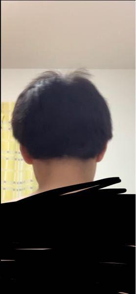 中二男子です。この絶壁とサイドの髪が横向きに生えてる頭は改善できますか?おすすめのヘアスタイルとかあれば具体的に教えて欲しいです。出来れば短髪がいいです。
