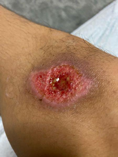 バイク事故で怪我した足が全く治りません。どーすればいいですか?ちなみに事故ったのは1週間前です