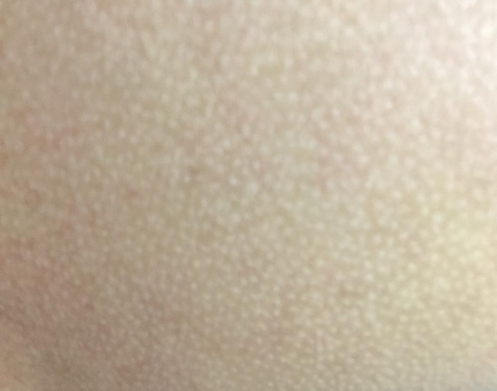 身体の肌の一部がこんな風になっているんですが、気持ち悪いしどうにかしたいのです。 原因と対処法、誰かわかりませんか