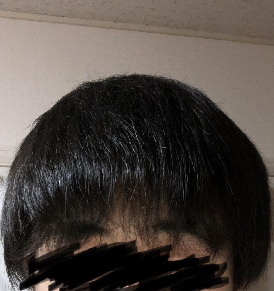 前髪だけ縮毛矯正するとおかしくなりますか?
