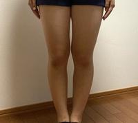 この太ももで、裾が広がっているミニスカートまたはショートパンツを履きたいのですが、正直太いですか? 厳しめの判定でお願いしたいです。