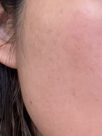 シミについて質問です。 美容皮膚科でレーザーでシミ取りをしようと思ったのですが、薄すぎてレーザーでは難しいとのことでした。  代わりにハイドロキノンとトレチノインを処方してもらいましたが皮が剥けるだけでシミが取れません。  他に方法はありますか?