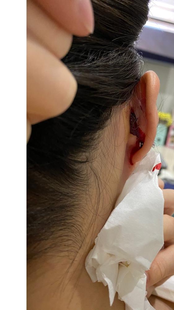 インナーコンク開けて一日経ちました 突然写真のように出血してきて驚いています 首に伝っていて気づきました このようなご経験ある方いますか? ガーゼ挟んで対応しています 挟む時少しだけ痛みありましたが それから触らないでいれば全く痛くないです
