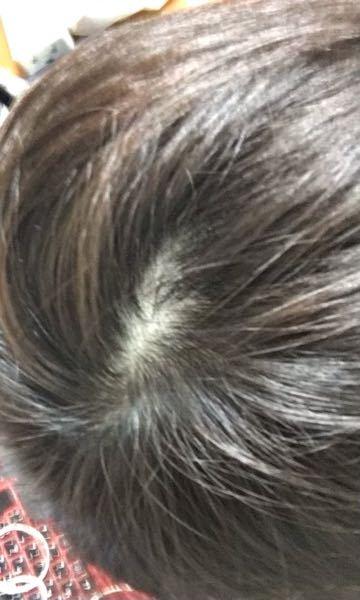 これはつむじハゲでしょうか? 髪の毛質は細いです。