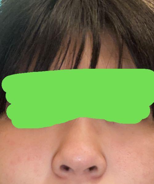 自分が何鼻なのかわかりません… こんな感じなんですがどなたか教えてください (肌汚くてすみません) それととにかく自分の鼻が嫌いなんですがノーズクリップしてたら少しはマシになるでしょうか?(・・;)