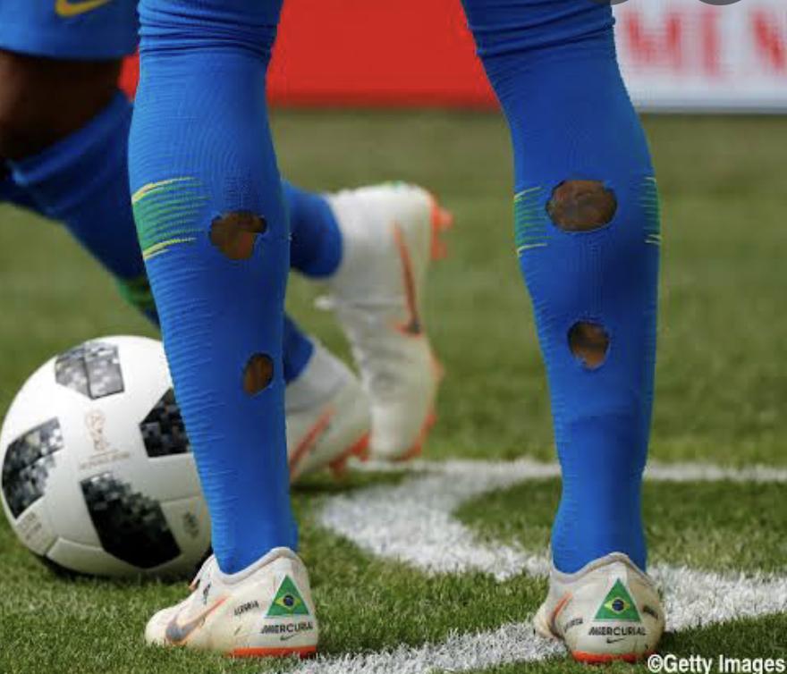 サッカーのストッキングでふくらはぎ側に穴が空いているのを見たことがあるんですけどどうして穴を開けているんですか? あとどうやったら綺麗に穴を空けれますか?