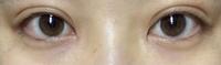 埋没を2週間前にしました。ですが二重の幅が気に入らず、ハム目がすごく嫌です。これはまだ腫れているのでしょうか?