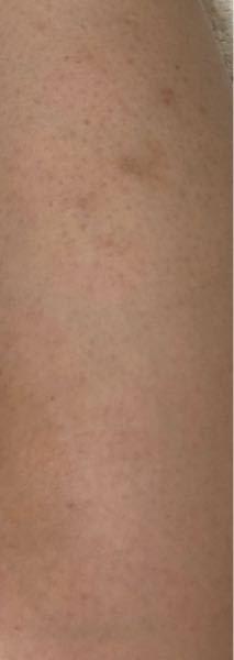 お目汚しすいません! 写真のように毛を剃った跡のようなぶつぶつや掻いてしまった跡が消えないのですがどうにか消す方法ありませんか?(> <) 保湿など毎日しても消えてくれません、 内側は剃った跡もなく綺麗なのですが外側だけこんな汚くて…