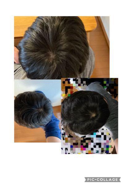 これ大丈夫でしょうか、、、? 適当に3枚ほど撮ってみました。ちなみに小さい頃から髪は細くいです。このくらいの透けてるのは普通なのでしょうか?