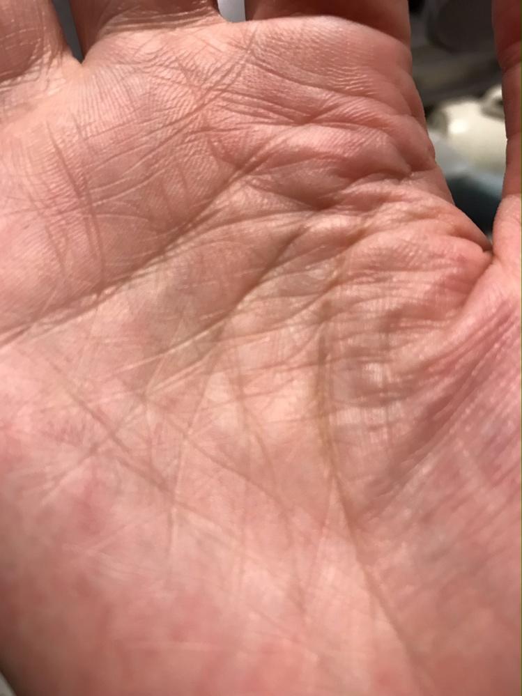 手のひら中央に五芒星があります すごいですか?