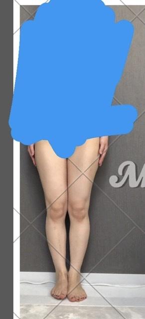 ダイエット(写真あり) 身長158センチ、48-49キロ、体脂肪24%、25歳女ですです。 数字だけ見ると標準で健康的な数値だと思うのですが、下半身が少しぽっちゃりしています。 特に太ももです。脚に隙間がほしいのですが、なかなかできません。膝上のお肉もスッキリしません。 今は筋トレと軽い食事制限をしているのですが、おすすめの脚痩せ方法ってありますか?筋トレよりもウォーキングとかのほうがいいのでしょうか。