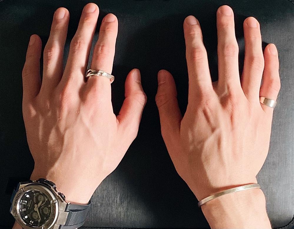 女性の方に質問です。 初デートにこんな感じでリングつけてきたら、引きますか? 普段は腕時計とバングルのみです。 そっちの方が良いですか?