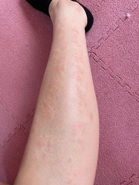 【毛穴があるため閲覧注意です】 脱毛器を使っているのですが使ったあと肌がこんな風になってかゆいです 足も腕もこのように炎症してます ちゃんとアイシングや保湿はしてます