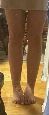 お見苦しい写真失礼します。中学3年女子です。 この足は太いでしょうか?また、この足で現在見えている部分までの丈の長さのスカートを履いて歩くのは見苦しいでしょうか…?運動が苦手でずっと文化部だったこともあり、色々な箇所に肉が着いてしまっています…。 皆さんの正直な意見を伺いたいです。また、それにあたって具体的にどこの部分の肉を落としたらいいかなども教えてくださいますと幸いです。
