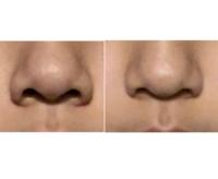 閲覧注意です。この鼻ってあぐら鼻ですよね。どんなマッサージで小鼻小さくなりましたか?