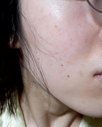 私は顔全体の色ムラ、ポツポツ、毛穴の開き、黒ずみで悩んでいます。何が原因か知りたいのですが、皮膚科に行けば分かるのでしょうか?またそのようなスキンケア目的なら普通の皮膚科ではなく、美容皮膚科に行くべき でしょうか?