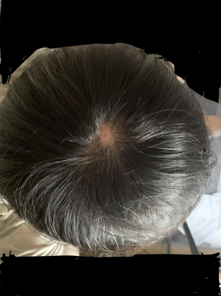 これは円形脱毛症でしょうか?もしそうであれば自然治癒することはありますか?ちなみに高校生男子です。